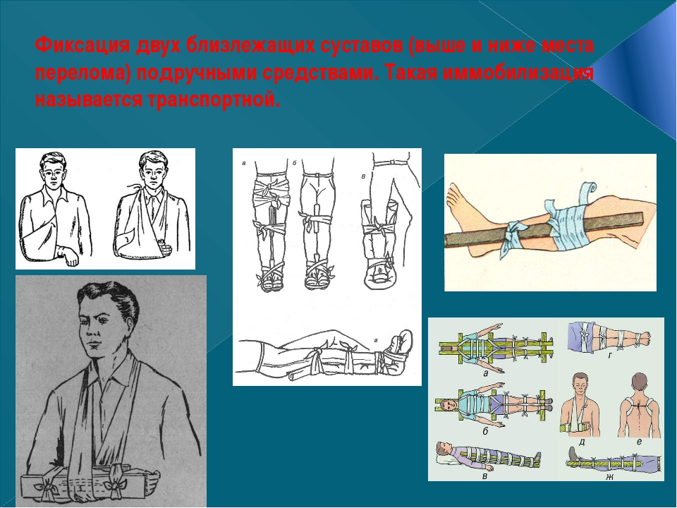 Фиксация двух близлежащих суставов (выше и ниже места перелома) подручными ср...