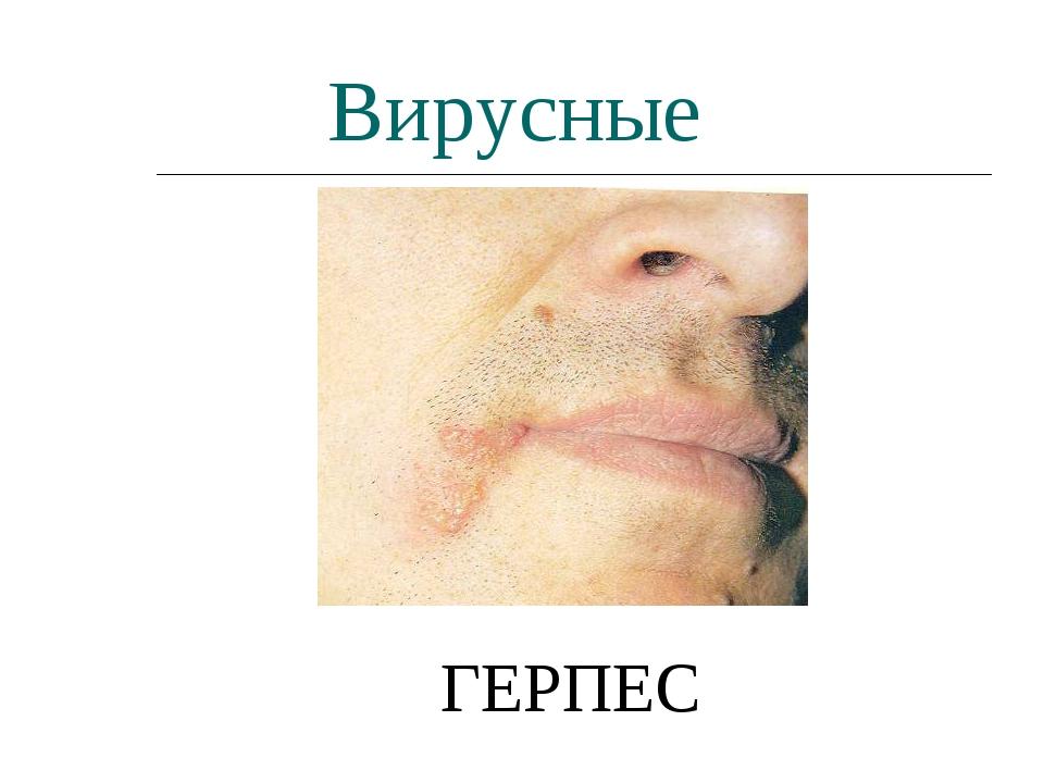 Вирусные ГЕРПЕС