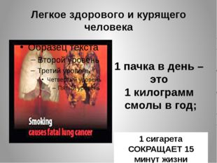Легкое здорового и курящего человека 1 пачка в день – это 1 килограмм смолы в