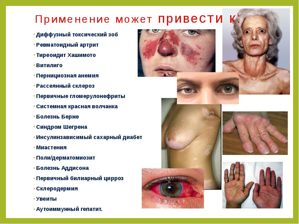 Диффузный токсический зоб Ревматоидный артрит Тиреоидит Хашимото Витилиго Пер...