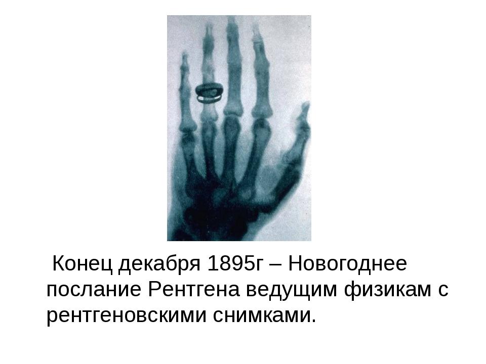 Конец декабря 1895г – Новогоднее послание Рентгена ведущим физикам с рентген...