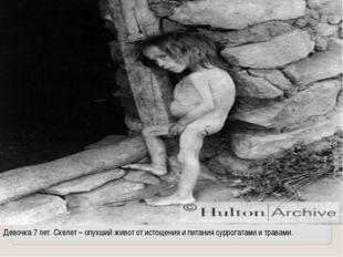 Девочка 7 лет. Скелет – опухший живот от истощения и питания суррогатами и тр