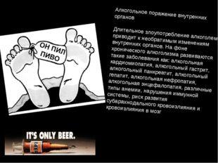 Алкогольное поражение внутренних органов Длительное злоупотребление алкоголем