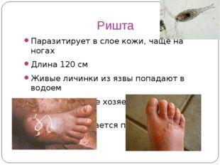 Ришта Паразитирует в слое кожи, чаще на ногах Длина 120 см Живые личинки из я