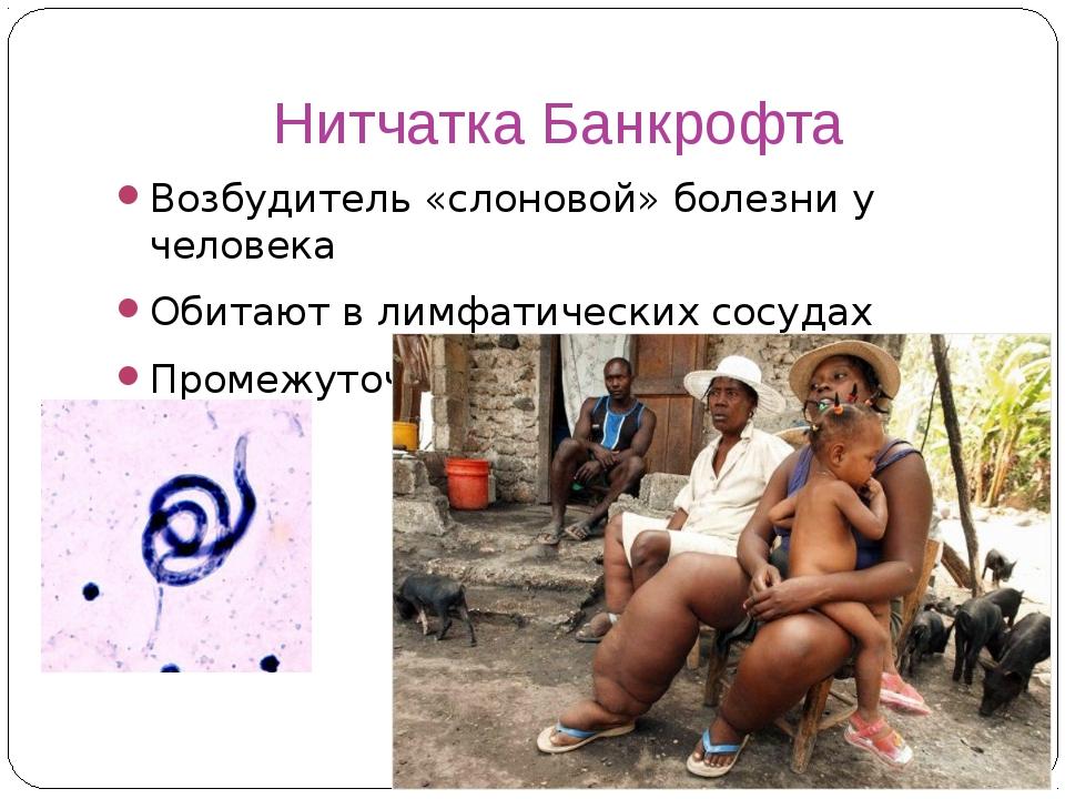 Нитчатка Банкрофта Возбудитель «слоновой» болезни у человека Обитают в лимфат...