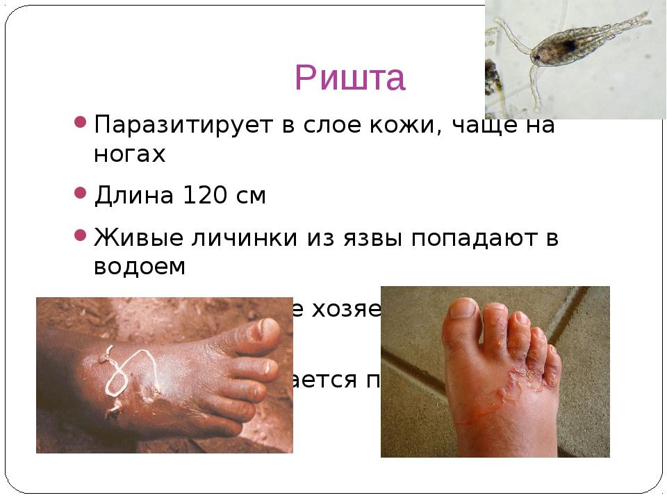 Ришта Паразитирует в слое кожи, чаще на ногах Длина 120 см Живые личинки из я...