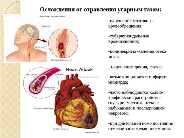 Осложнения от отравления угарным газом: -нарушение мозгового кровообращения;...