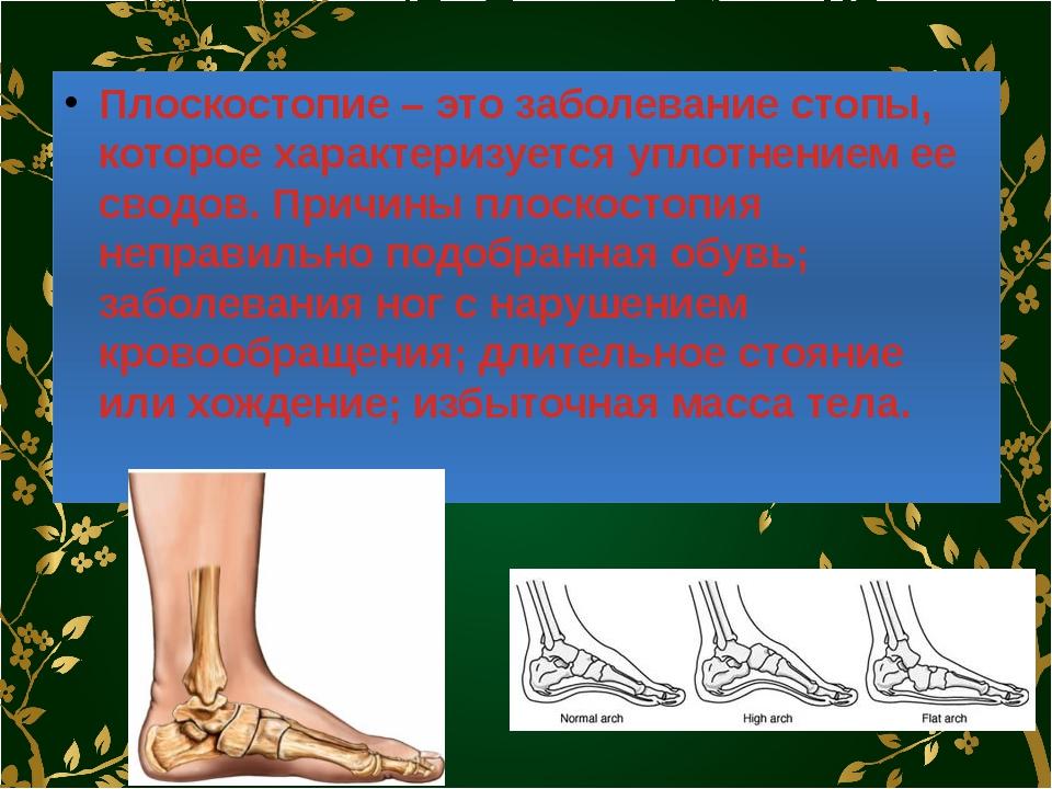 Плоскостопие – это заболевание стопы, которое характеризуется уплотнением ее...