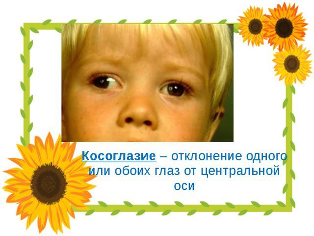 Косоглазие – отклонение одного или обоих глаз от центральной оси