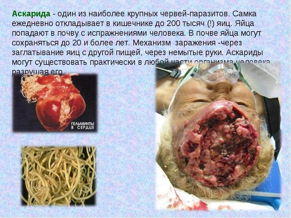 Аскарида - один из наиболее крупных червей-паразитов. Самка ежедневно отклад...