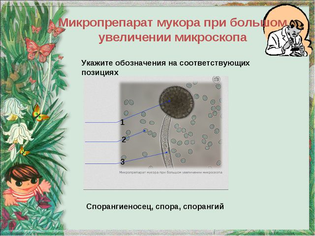 Микропрепарат мукора при большом увеличении микроскопа 1 2 3 Спорангиеносец,...