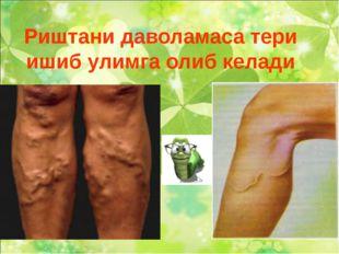 Риштани даволамаса тери ишиб улимга олиб келади