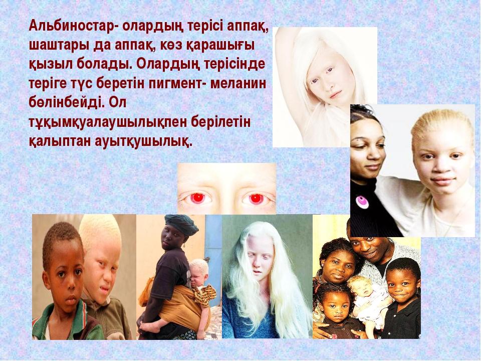 Альбиностар- олардың терісі аппақ, шаштары да аппақ, көз қарашығы қызыл болад...