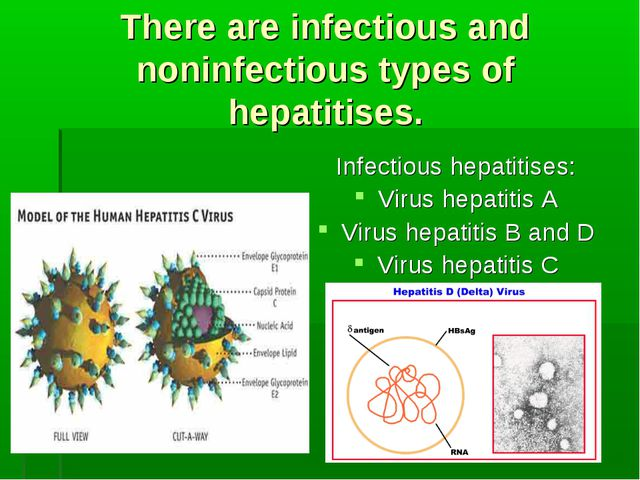 There are infectious and noninfectious types of hepatitises. Infectious hepat...