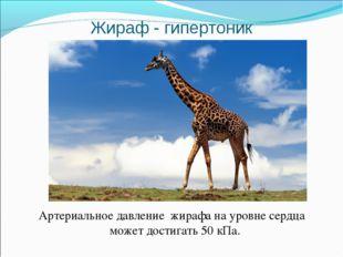 Жираф - гипертоник Артериальное давление жирафа на уровне сердца может достиг