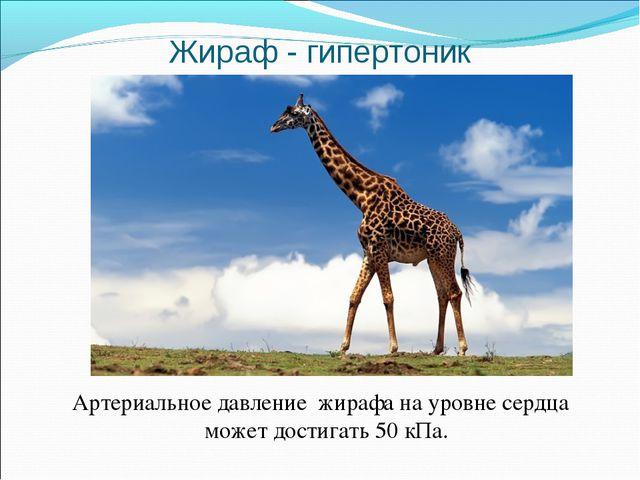 Жираф - гипертоник Артериальное давление жирафа на уровне сердца может достиг...