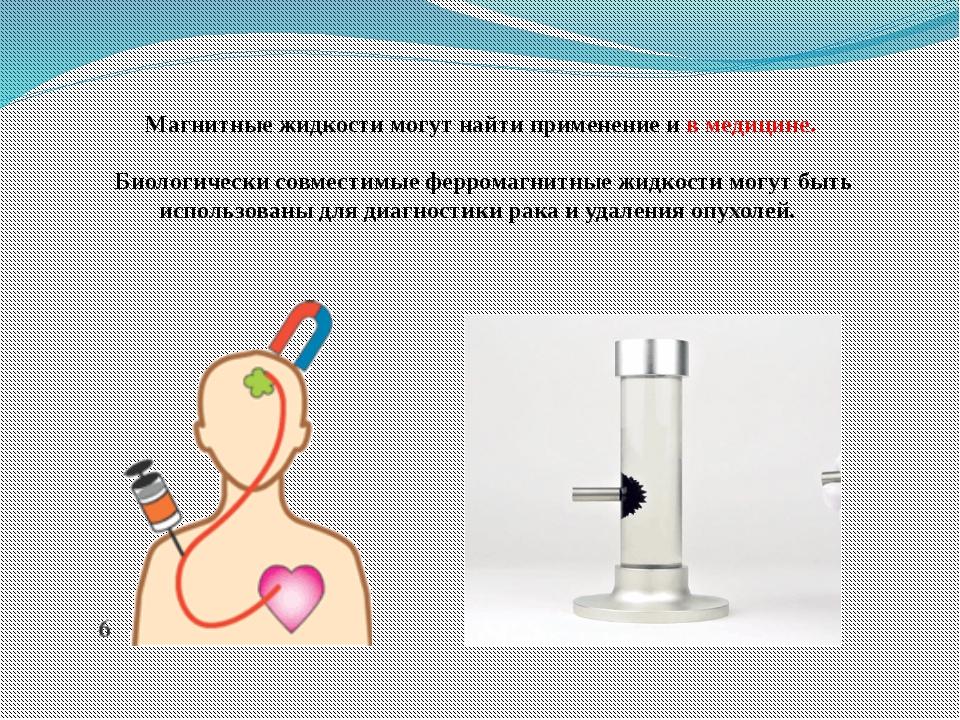 Магнитные жидкости могут найти применение и в медицине. Биологически совмести...