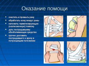 Оказание помощи очистить и промыть рану обработать кожу вокруг раны наложить
