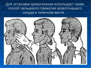 Для остановки кровотечения используют также способ пальцевого прижатия кровот