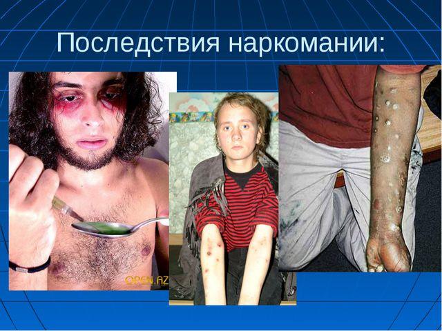Последствия наркомании: