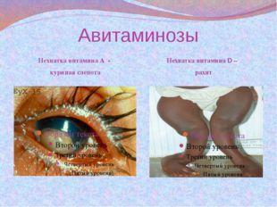 Авитаминозы Нехватка витамина А - куриная слепота Нехватка витамина D – рахит