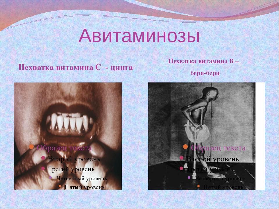 Авитаминозы Нехватка витамина С - цинга Нехватка витамина В – бери-бери