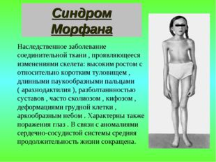 Синдром Морфана Наследственное заболевание соединительной ткани , проявляющее