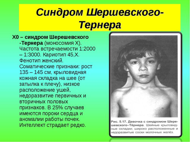 Синдром Шершевского-Тернера X0 – синдром Шерешевского -Тернера (моносомия Х)....