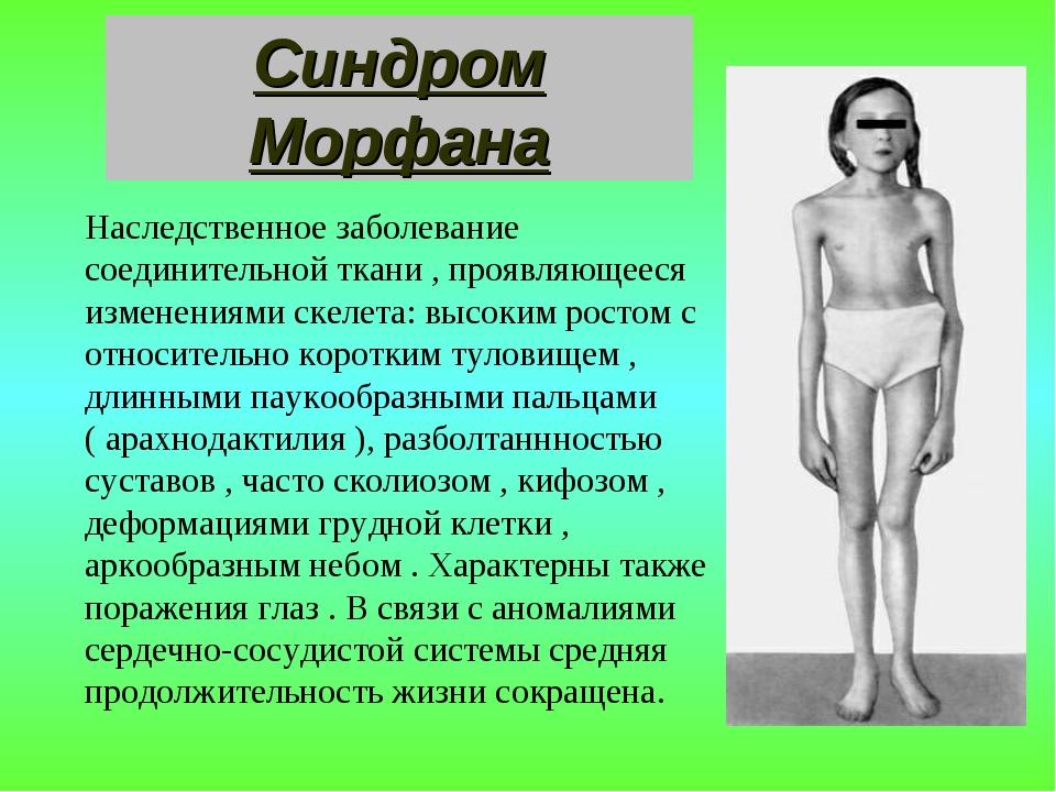 Синдром Морфана Наследственное заболевание соединительной ткани , проявляющее...