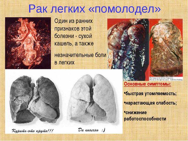 Рак легких «помолодел» Один из ранних признаков этой болезни - сухой кашель,...