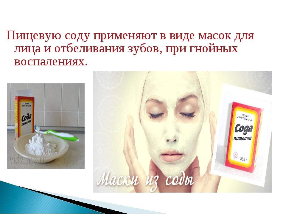 Пищевую соду применяют в виде масок для лица и отбеливания зубов, при гнойных...