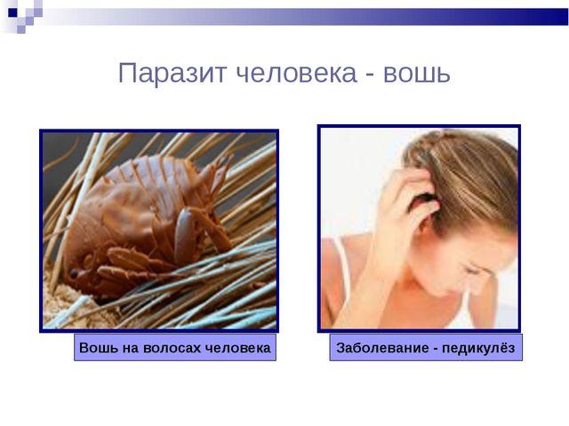 Паразит человека - вошь Вошь на волосах человека Заболевание - педикулёз