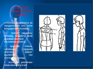 Признаки неправильной осанки • голова выдвинута за продольную ось тела (опуще