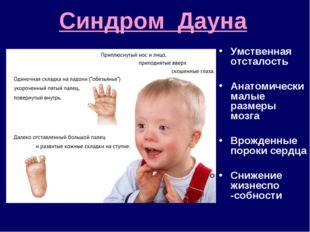 Синдром Дауна Умственная отсталость Анатомически малые размеры мозга Врожденн