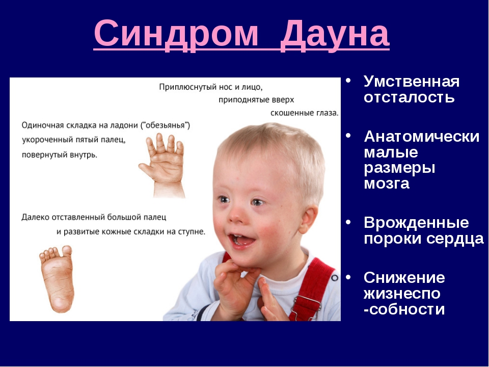 Синдром Дауна Умственная отсталость Анатомически малые размеры мозга Врожденн...