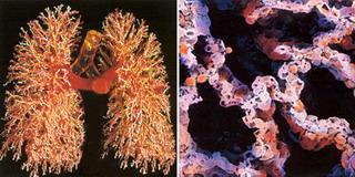 Бронхи и альвеолы