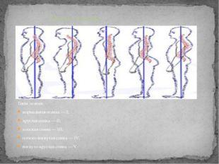 Типы осанки: нормальная осанка — I; круглая спина — II; плоская спина — III;