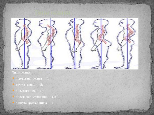 Типы осанки: нормальная осанка — I; круглая спина — II; плоская спина — III;...