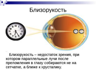 Расстояние наилучшего зрения Оптимальное расстояние при чтении и письме для н