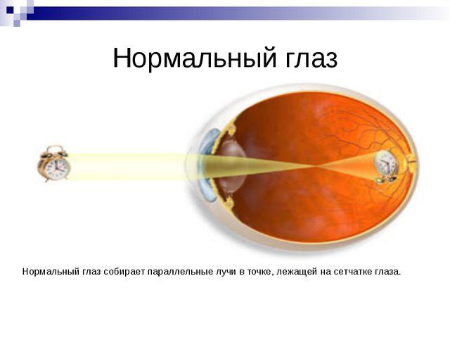 Исправление дальнозоркости Для исправления дальнозоркости применяют очки с со...