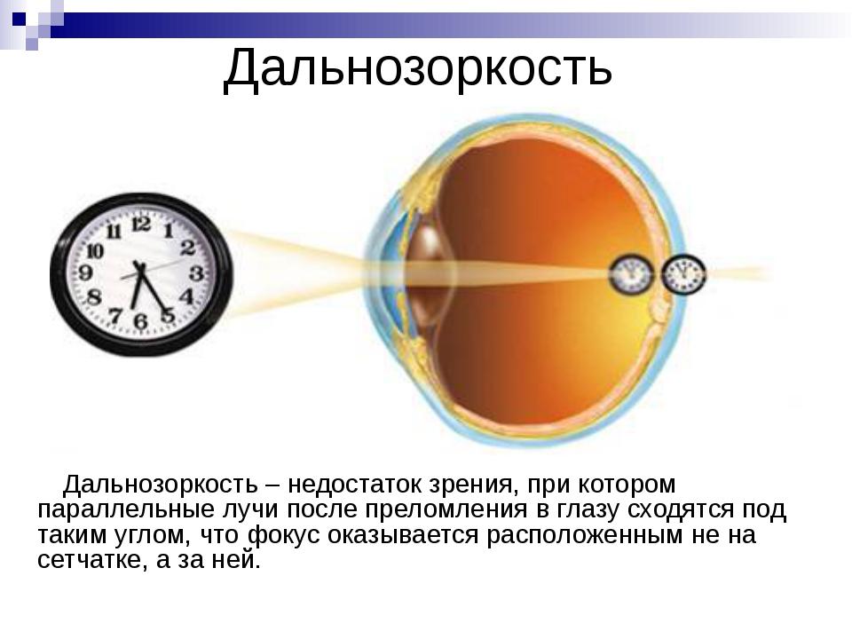 Причины близорукости Избыточная оптическая сила глаза. Удлинение глаза вдоль...