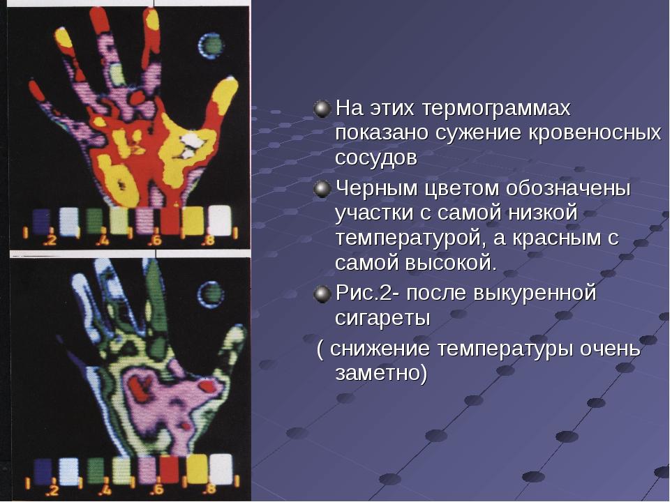 На этих термограммах показано сужение кровеносных сосудов Черным цветом обоз...