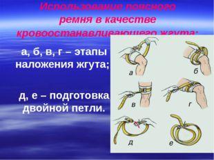 Использование поясного ремня в качестве кровоостанавливающего жгута: а, б, в,