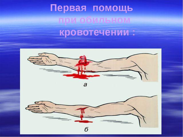 Первая помощь при обильном кровотечении :