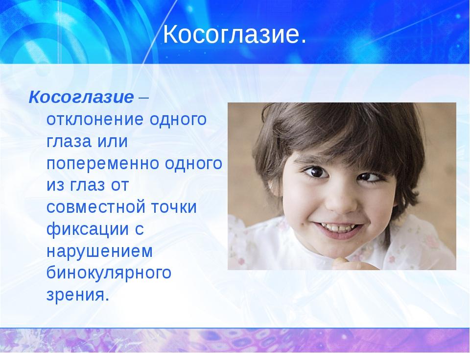 Косоглазие. Косоглазие – отклонение одного глаза или попеременно одного из гл...