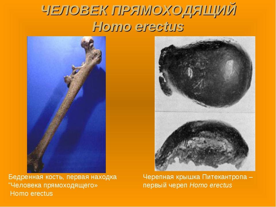 """ЧЕЛОВЕК ПРЯМОХОДЯЩИЙ Homo erectus Бедренная кость, первая находка """"Человека п..."""