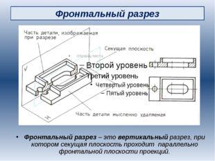 Фронтальный разрез Фронтальный разрез – это вертикальный разрез, при котором