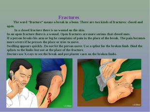 """Fractures The word """"fracture"""" means a break in a bone. There are two kinds o"""