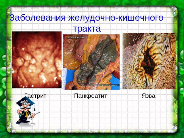 Гастрит Панкреатит Язва Заболевания желудочно-кишечного тракта