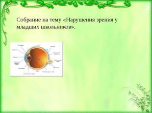 Собрание на тему «Нарушения зрения у младших школьников». Строение глаза:Гла